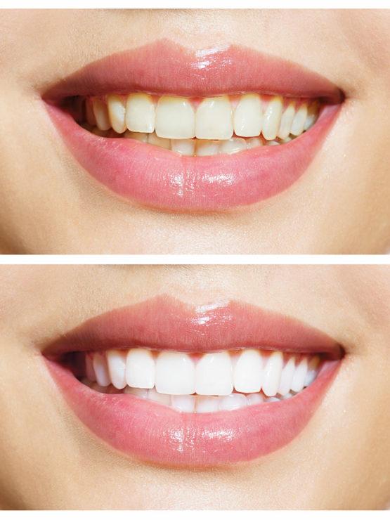 dental-clinic-kovacevic-izbjeljivanje-zuba