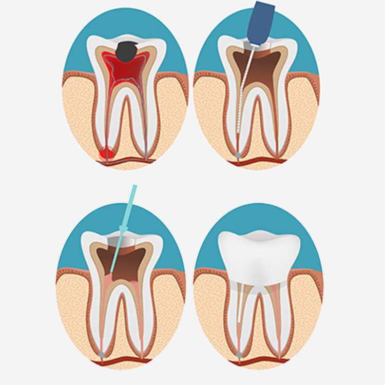 dental-clinic-kovacevic-endodoncija-1
