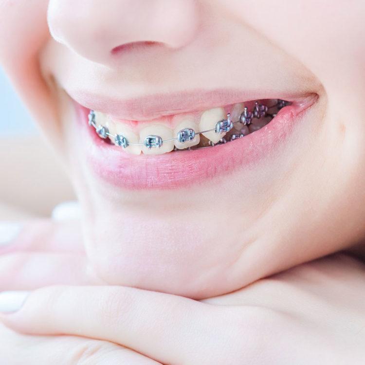 dental-clinic-kovacevic-ortodoncija-1