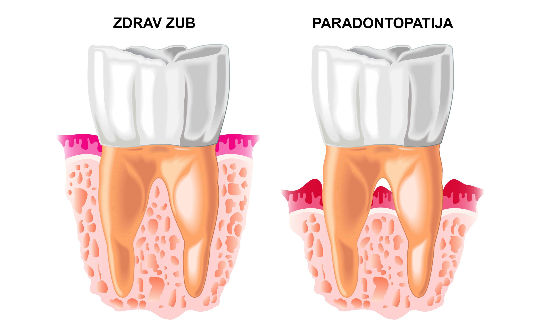 dental-clinic-kovacevic-paradontologija-3