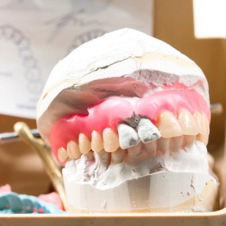 dental-clinic-kovacevic-protetika-2