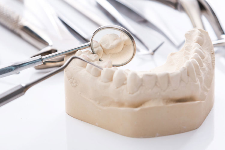 dental-clinic-kovacevic-protetika
