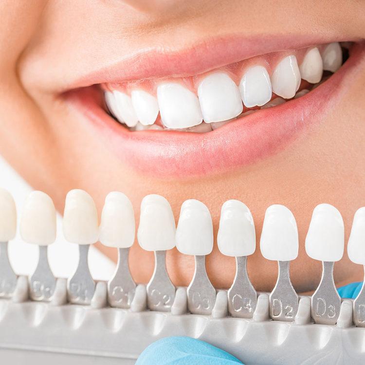 dental-clinic-kovacevic-veniri