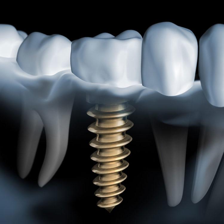 dental-clinic-kovacevic-zubni-implanti